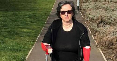 Mum with 5% survival chance after losing limbs to infection starts walking again