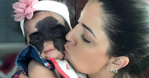 Girl with 'batman' birthmark forced to stop treatment abroad after visa runs out