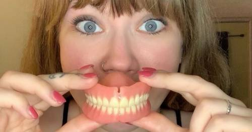 Woman loses all her teeth after gastric bypass forcing her to wear dentures at 32