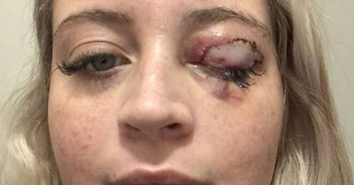 Birthday girl has eyelid ripped off by chihuahua as she gets her lashes done