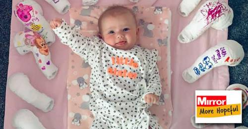 Smiling baby born with clubfoot celebrates amazing progress in adorable photo