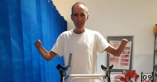 Dad miraculously survives after losing legs and hands to devastating meningitis