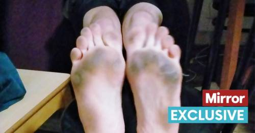 Dad shares photo of dirty feet after a 'day of walking around his Pontins chalet'