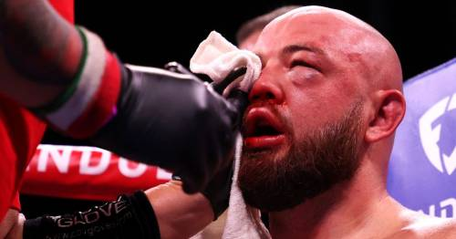 Heavyweight boxer warned not to blow his nose after fracturing skull in defeat