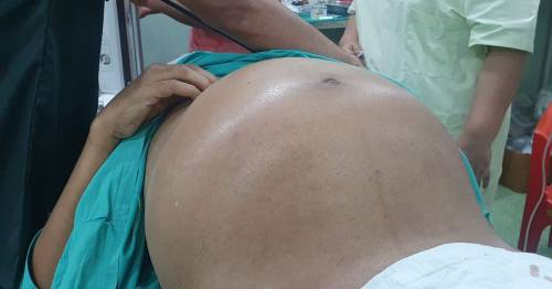 Gigantic 22lbs tumour removed from patient's stomach in four-hour operation – World News